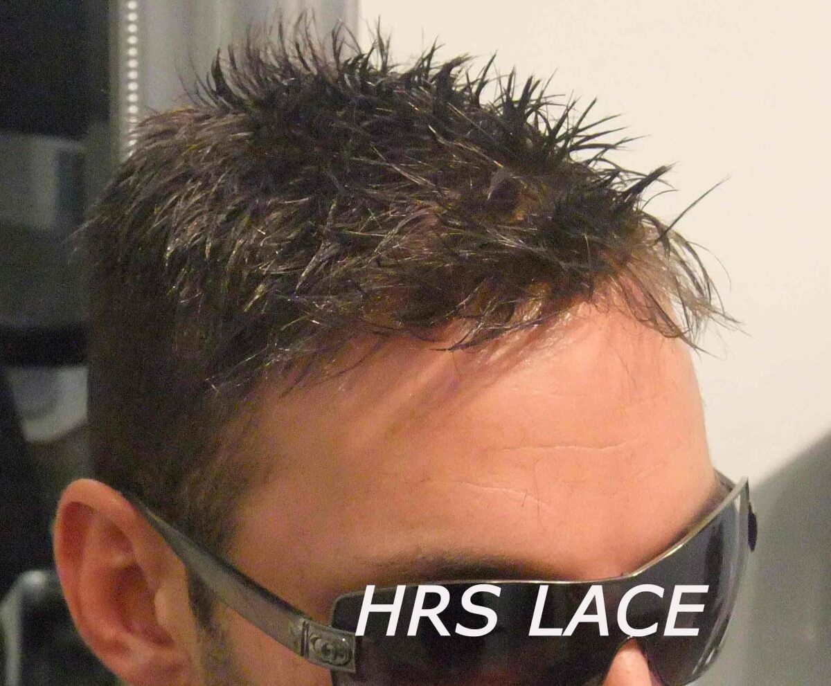 hrs protesi capelli in lace