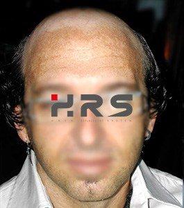 Protesi capelli uomo e donna
