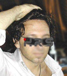 protesi capelli HRS