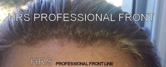 protesi capelli dermo2010
