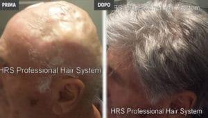 Protesi capelli prima e dopo
