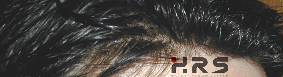 protesi capelli front naturale