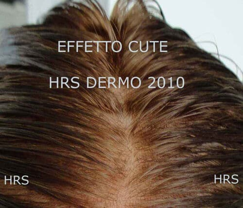 protesi capelli effetto cute