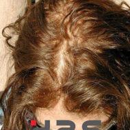 protesi capelli pellicola