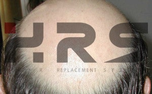 calco protesi capelli