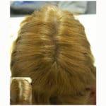 anti diradamento capelli