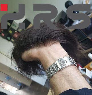 fornitori protesi capelli