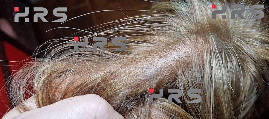 protesi capelli prezzi bassi
