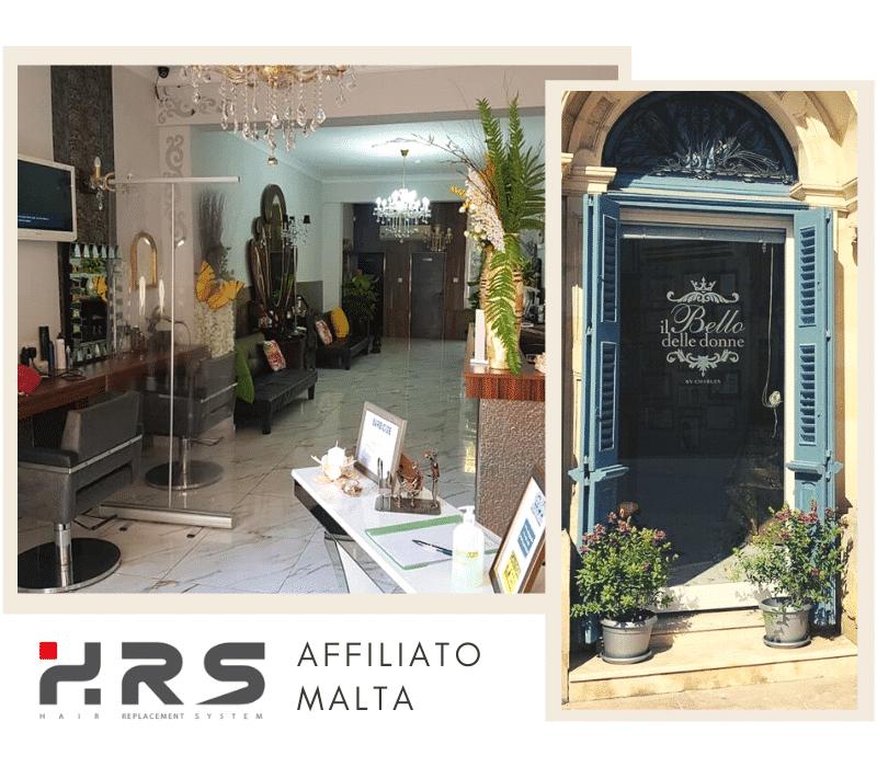 protesi capelli HRS Malta